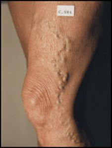 varicose vein treatment in San Diego