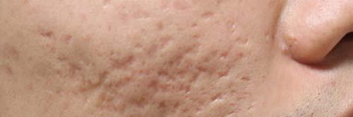 fraxel scar removal san diego
