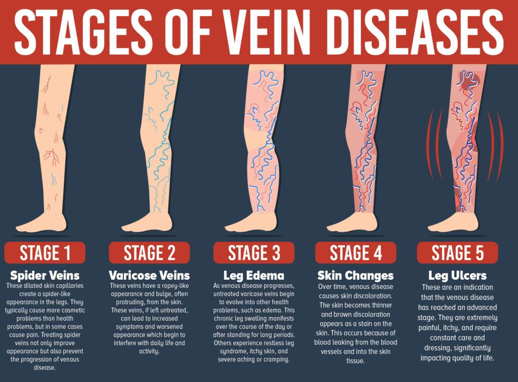 varicose vein infographic