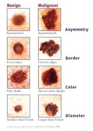 mole-chart