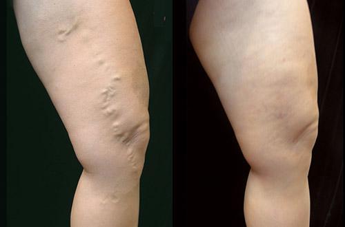 best varicose vein treatment in San Diego