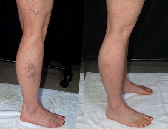 best spider vein treatment in San Diego