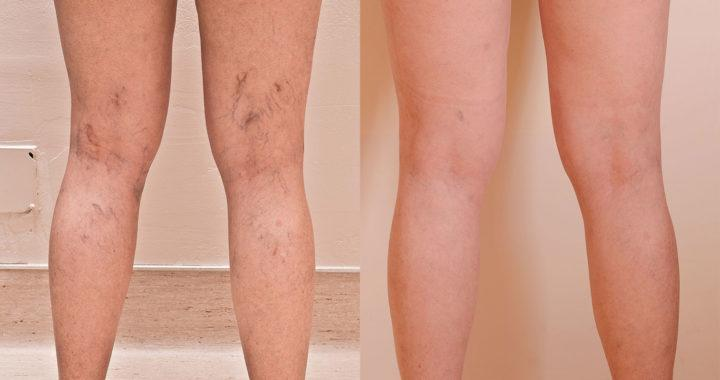 Image result for Is Spider Vein Treatment Worth the Cost?