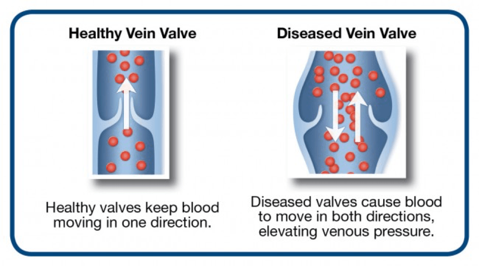 venous reflux disease san diego