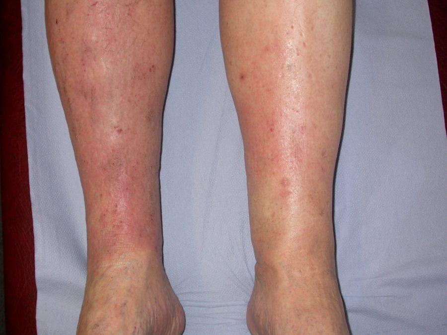 Varicose eczema San Diego
