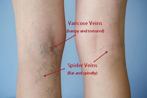 The Differences Between Varicose Veins Amp Spider Veins