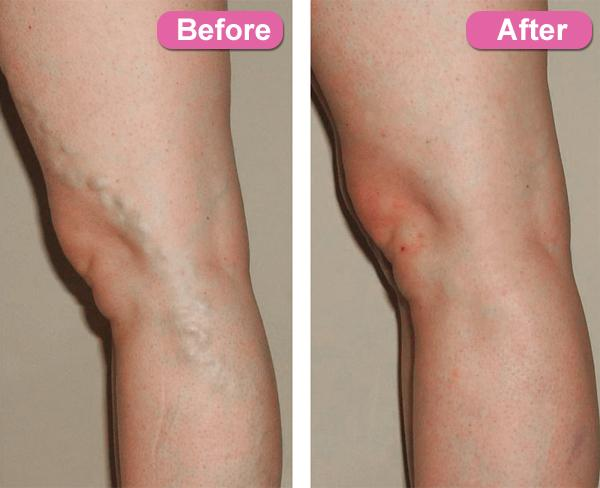 laser vein treatment san diego