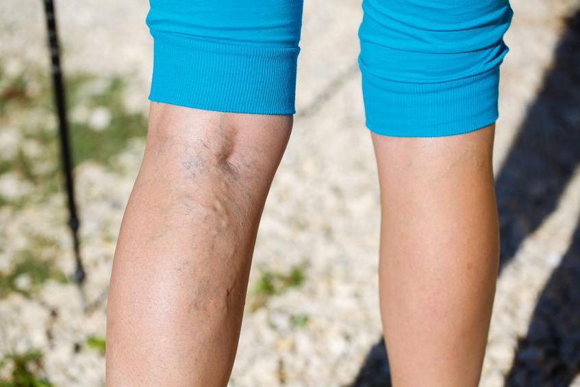 athletes varicose veins