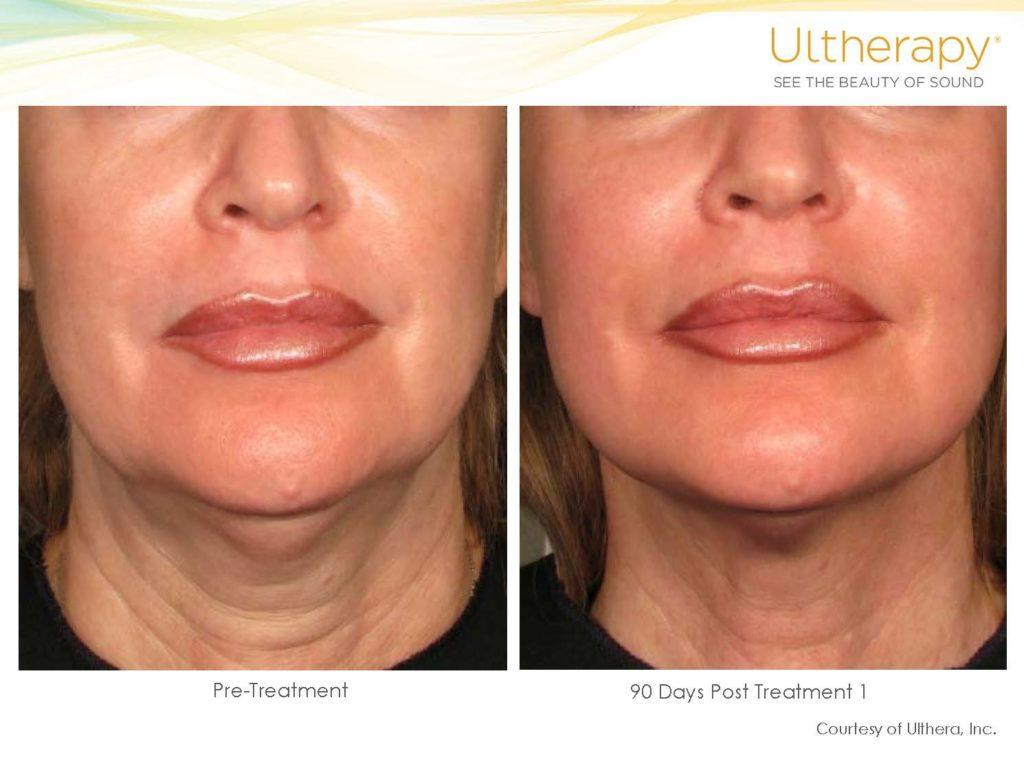 ultherapy San Diego