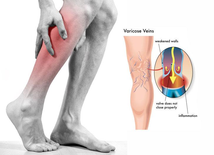 varicose veins and excercise