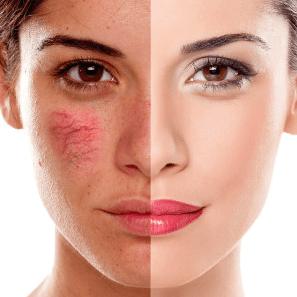 facial veins san diego
