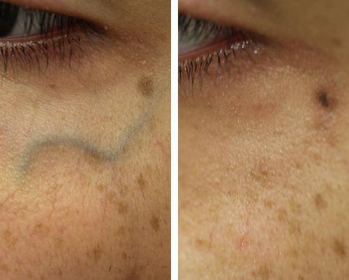 before and after laser vein treatment for facial veins san diego