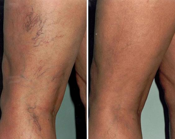 sclerotherapy before and after 2